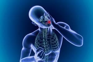 Как лечат артрит челюстно-лицевой