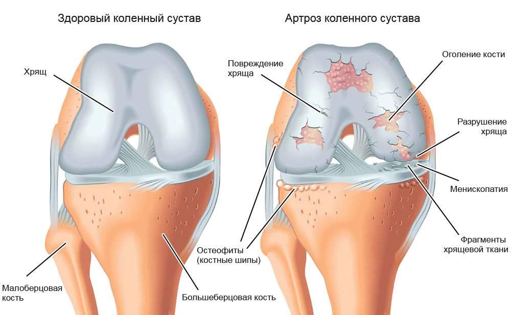 Деформирующий остеоартроз коленного сустава лечение при различной степени тяжести