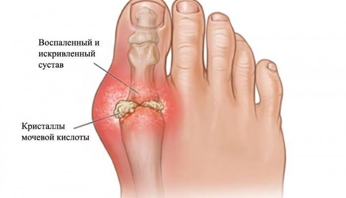 artrit4