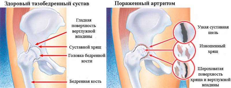 Сустав пораженный артритом