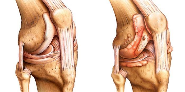 Здоровый и больной артритом коленный сустав