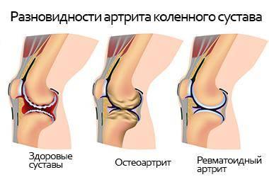 Артрит коленного сустава признаки