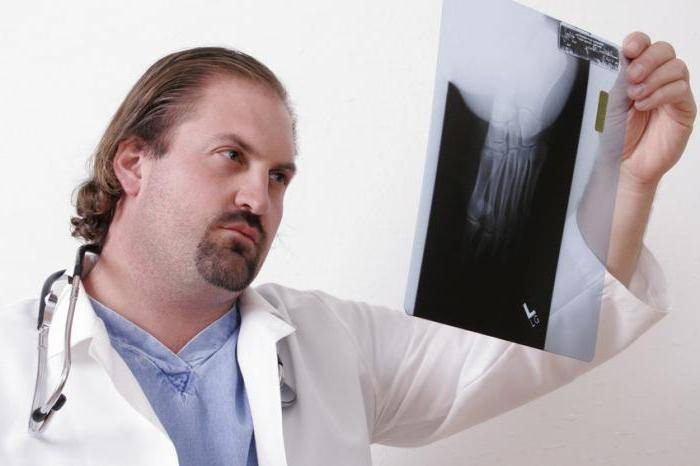 Лечение артроза и артрита