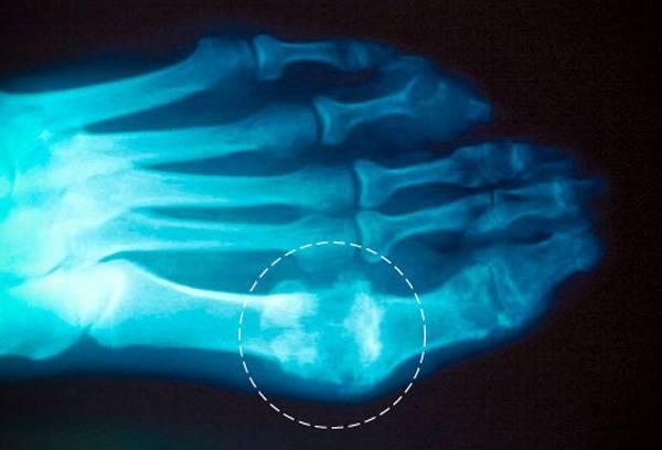 подагра артрит