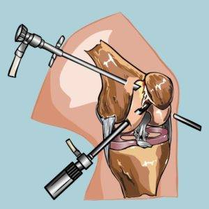 Операция на мениске нога колено