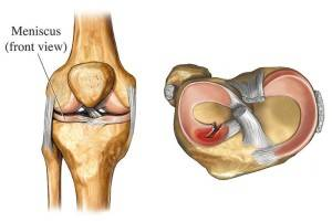 мениск колено