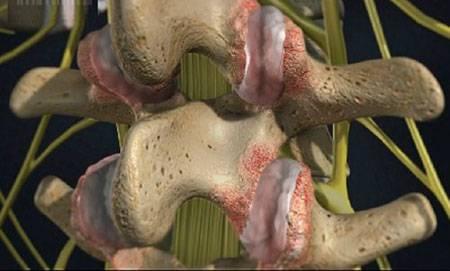 Артроз голеностопного сустава после перелома