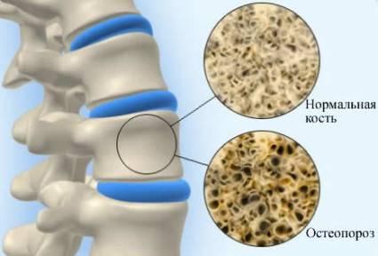 Болезнь кости человека