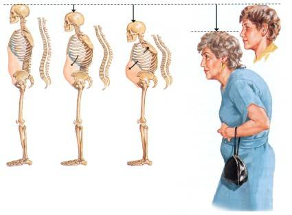 Болезнь кости у женщин