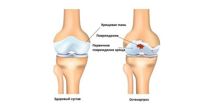Здоровый коленный сустав и пораженный остеоартрозом