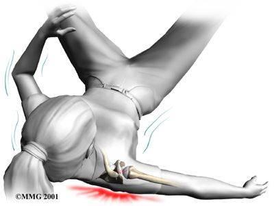 Посттравматический артроз плечевого сустава — Суставы