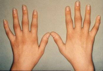 Основные меры предотвращения развития артрита