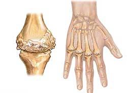 Ревматоидный артрит – что это такое?