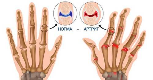 Причины возникновения ревматоидного артрита