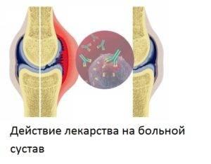 obezbolivayushhie-pri-artrite