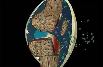 воспаленное колено - 3d артрит