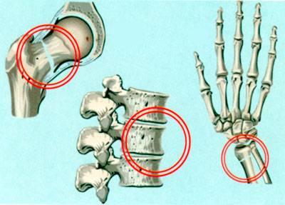 Переломы в суставах при остеопорозе и возникающие при этом боли