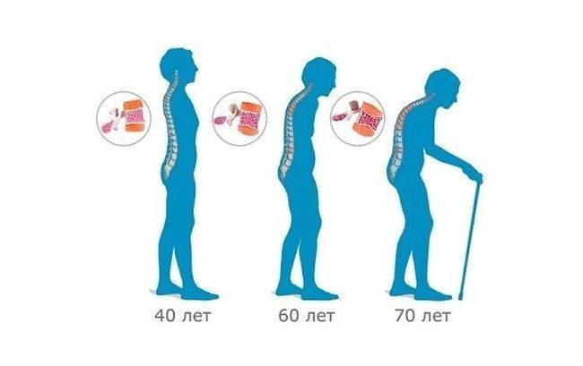 Первое время остеопороз себя не проявляет