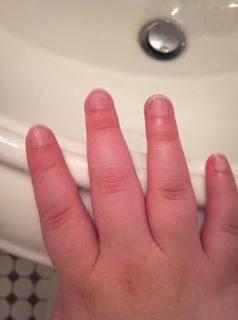 Опухшие пальцы на руках