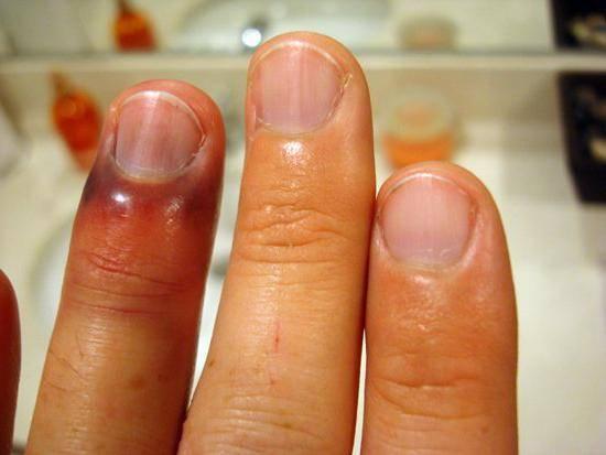 Опухли фаланги пальцев рук