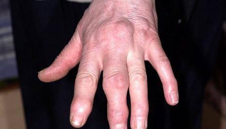 Опух средний палец на руке