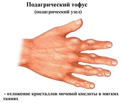 Подагра пальцев рук