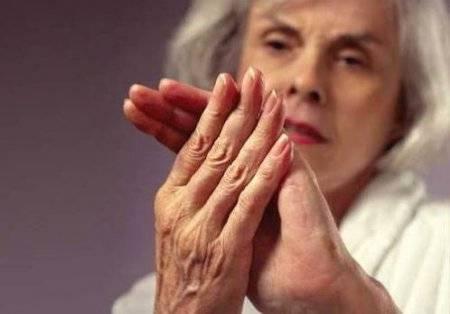 Как снять опухоль с пальца руки при аллергии