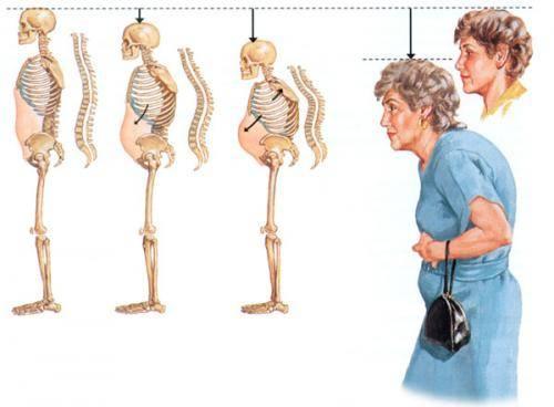 Признаки болезни спины