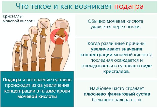 Острый приступ подагры - симптомы и лечение купирование боли