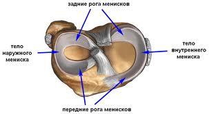 повреждение заднего рога медиального мениска