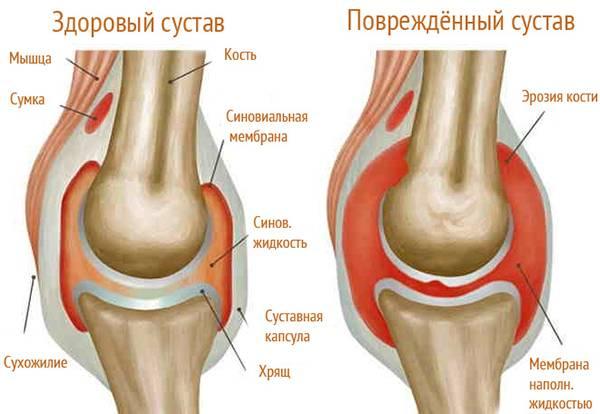Подагрический артрит коленного сустава