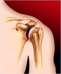 Воспаление плечевого сустава чем лечить — Суставы