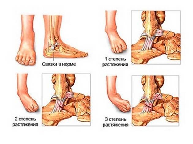 вывих ноги голеностопа опухоль