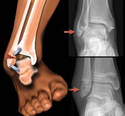 Перелом голеностопа при остеопорозе стопы