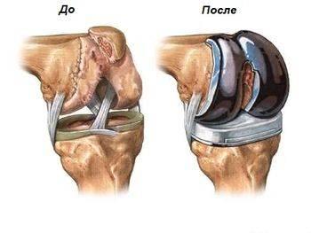 Протез для тотального эндопротезирование коленного сустава