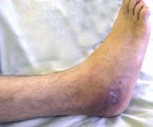 Болезнь ног - остеомелит