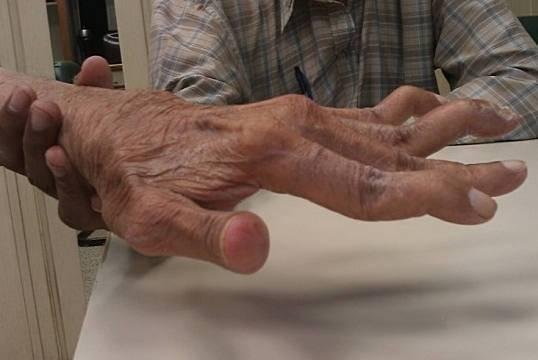 ревматоидный артрит - симптомы