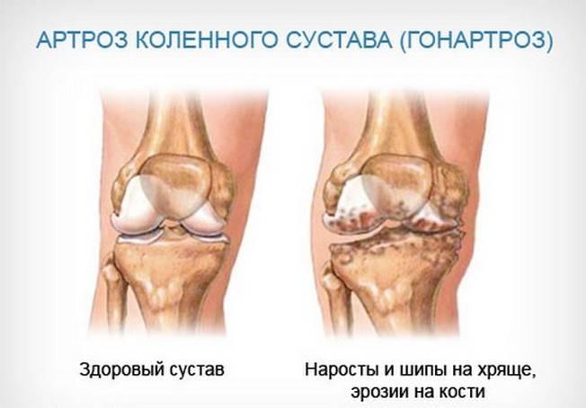 Изображение - Как восстановить суставы при артрозе 5a70564ca3e965a70564ca3eec