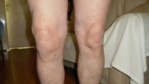 Диета при коксартрозе тазобедренного сустава 2 степени