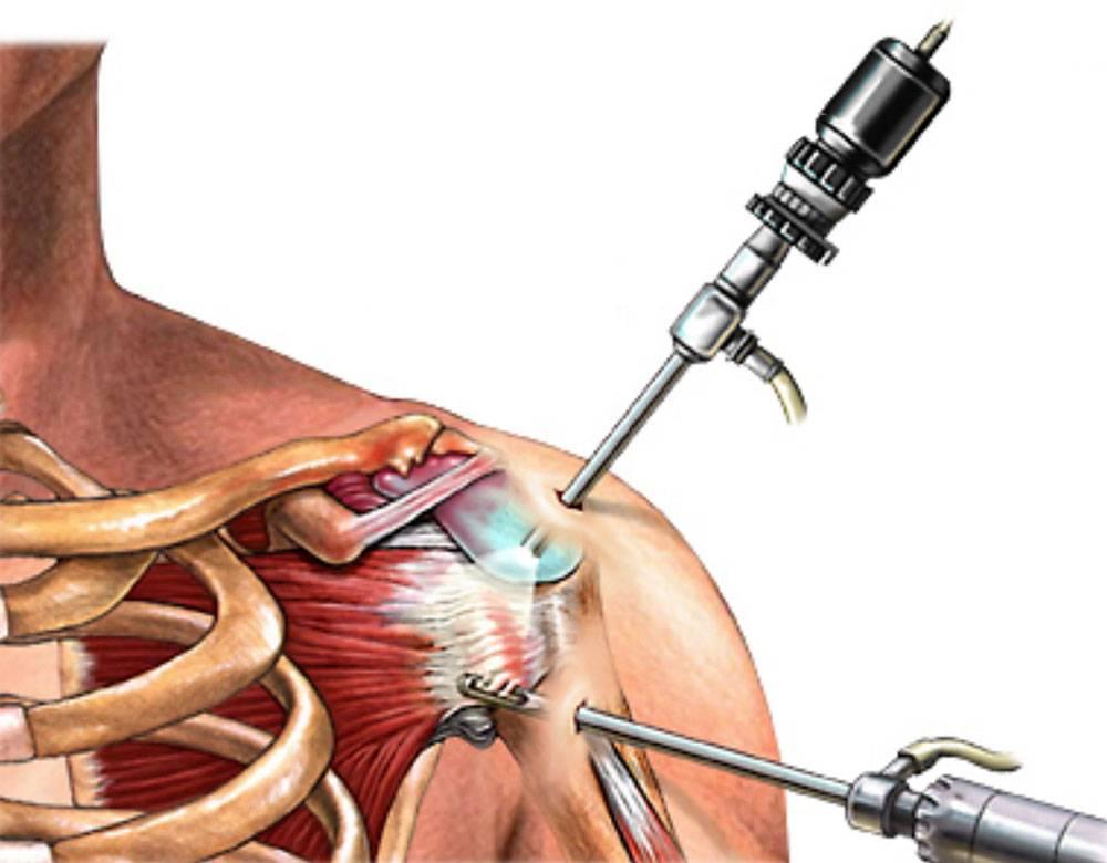 Что такое артроскопия и эндопротезирование сустава