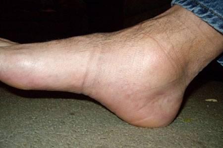 Симптомы 2 степени артроза голеностопного сустава