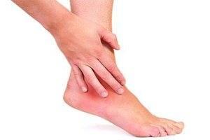 Симптомы артроза голеностопного сустава