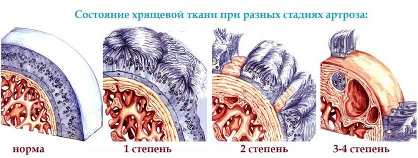 Состояние хрящевой ткани на разных стадиях артроза