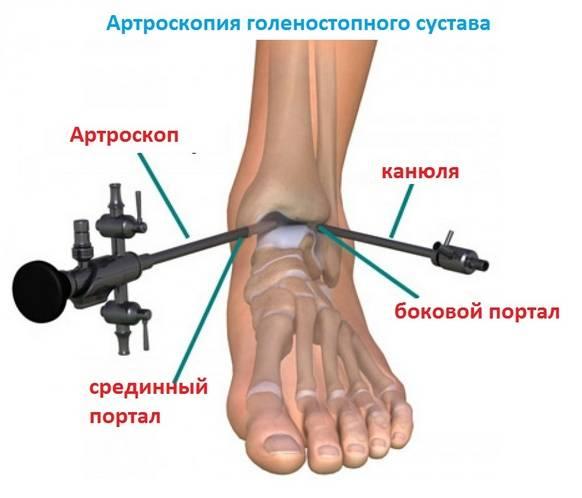 Артроскопия голеностопного сустава