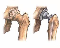 Реабилитация после эндопротезирования тазобедренного сустава велотренажер