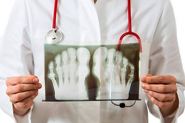 Рентгеновский снимок при подагрическом артрите