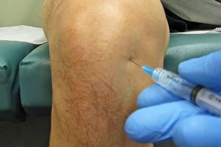 Прокол колена