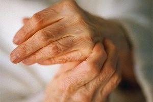 артрита пальцев рук