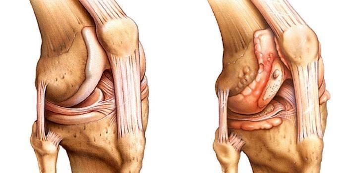 Здоровый сустав (слева) и поврежденный мениск (справа)