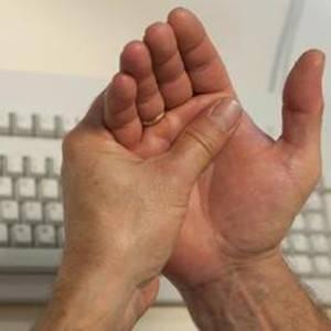 воспаление суставов на руках